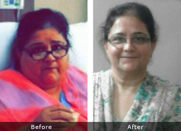surgery for weight loss