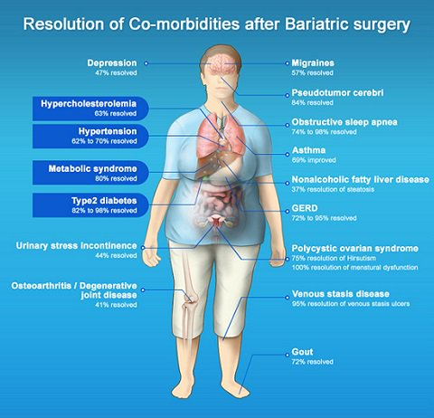 Best Bariatric surgeon in Tricity