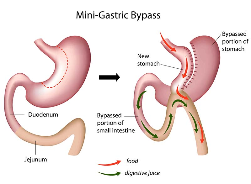 mini gastric bypass surgery
