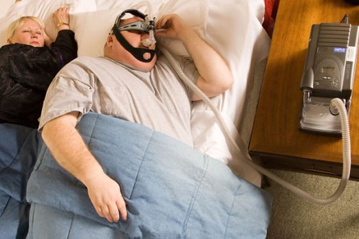 Treatment of sleep Apnea