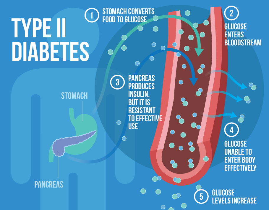 surgery for diabetes