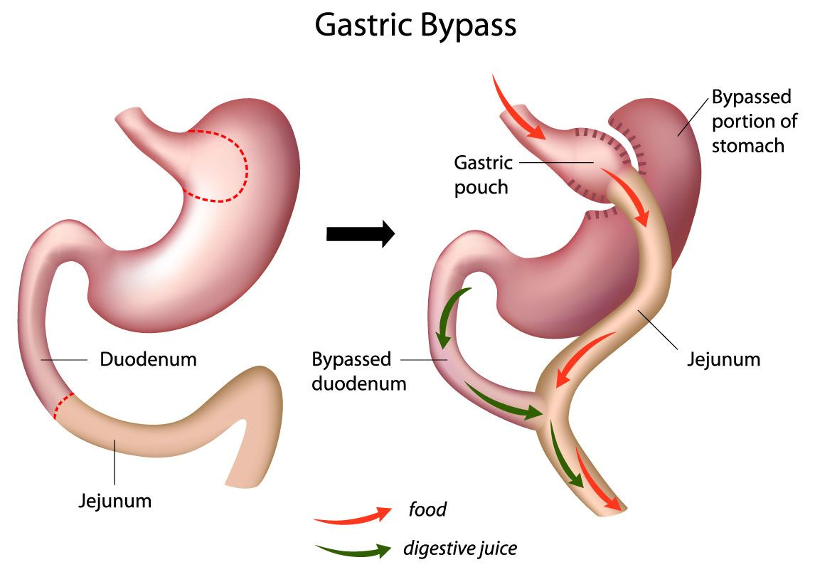 Mini Gastric Bypass Surgeon Punjab